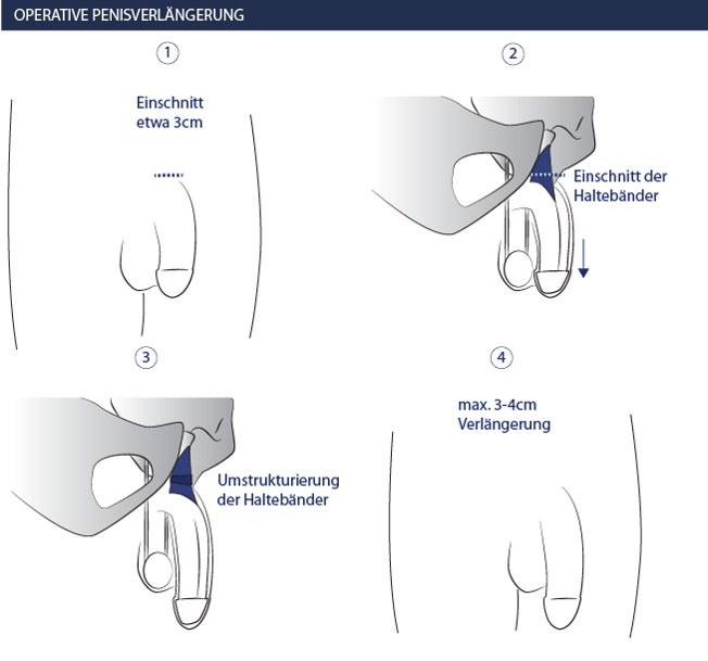 Operative Penisverlängerung