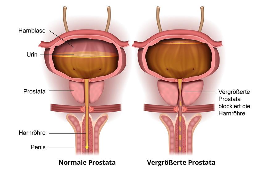 Nachsorge bei Prostata-Operation Penis Ratgeber
